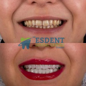 Full Smile Makeover in Esdent Dental Centre Turkey