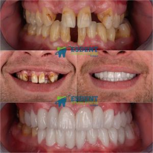 Smile Makeover with Zirconia Crowns in Turkey for Mike from Somerset
