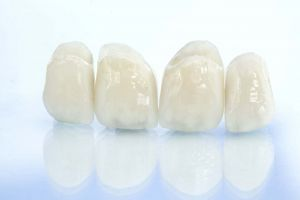 All Ceramic Crowns in Esdent Dental Centre Turkey