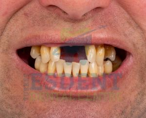 David's teeth with excessive bone resorption, before implants