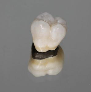 Porcelain-Metal Crowns in Esdent Dental Centre Turkey