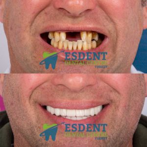 All on 8 dental implants before and after comparison