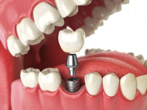 Parts of a Dental Implant: Body, Abutment and a Crown